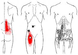 札幌市でトリガーポイント股関節治療おすすめ,変形性, スポーツ外傷