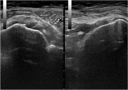 Bild: Ultraschall (strahlenfrei)