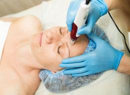 microneedling Behandlung