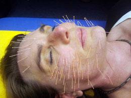 Gesichtsstraffung mit Akupunktur nach Vandesrasier: Nachhaltige Faltenglättung und jüngeres Aussehen.