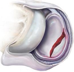 Bruch des Pfannenknochens der Schulter