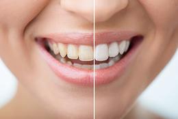 八戸 歯医者 くぼた歯科 ホワイトニング セラミック ポリリン