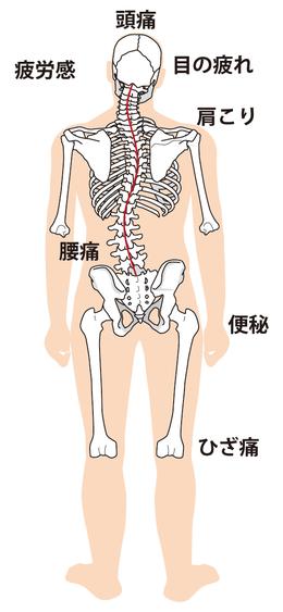 不眠症とうつ病 仙骨、尾骨の整体ポイント