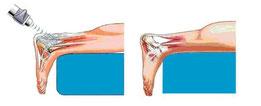 Terapia ad onde d'urto per la tendinite calcifica