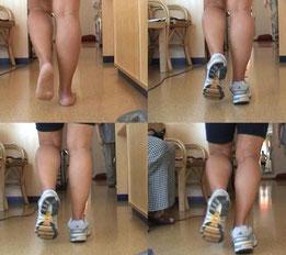 die Überprüfung und Dokumentation des Gangbildes mit Schuh und Einlage mit Vergleichen, eine  einfache Gang Analyse