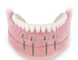 Modelldarstellung von 4 Miniimplantaten im Unterkiefer mit dazugehöriger Totalen Prothese