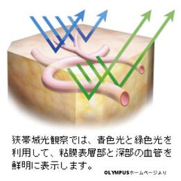 鶴川胃腸科 内視鏡 NBI