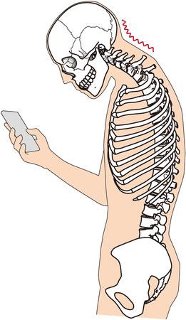 首痛・こり・つけね痛の原因は頭蓋骨、肩、腕のねじれからきます