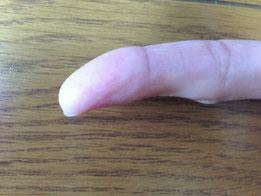 トゲのささった指、傷跡が消えました!
