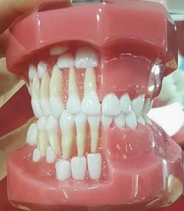corretta posizione dei denti da latte rispetto ai definitivi