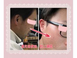 岐阜県多治見市肌改善専門店リトハピですニキビたるみしわシミ毛穴赤み痩身ブライダルでお悩みの方化粧品代理店様募集中です