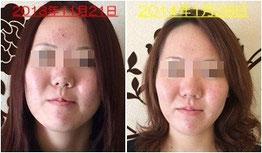 リフティングヘッド&フェイシャル Before/After