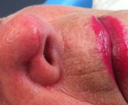 tumeur cutanée cancer peau