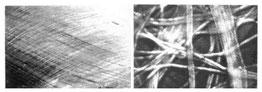 Bindegewebshülle (Faszie) am Oberschenkel