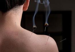 Acupunctuur en moxa in Delft