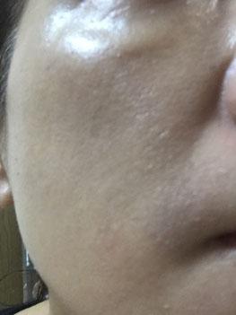 5日後お顔全体にぽろぽろと皮がめくれて、ツヤのあるお肌が見えてきてます。