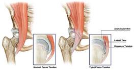 股関節痛と鼠蹊部の痛み