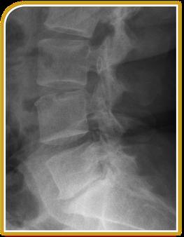 Osteochondrose in der LWS