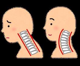 喉に違和感のある頚椎椎間板ヘルニアの奈良県大和高田市の女性