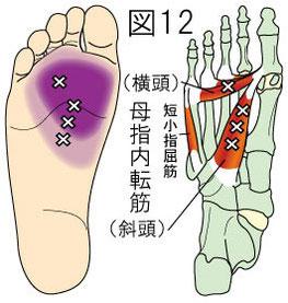 母指内転筋トリガーポイントによる足の痛み