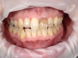 八戸市 くぼた歯科 ホワイトニング ポリリン