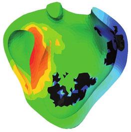 Simulation de l'activité électrique dans les 2 ventricules cardiaques. Elle permet de voir, sur les zones sombres, les tissus nécrosés dus à un infarctus du myocarde et qui conduisent moins bien les ondes électriques.(© Inria/Asclepios)
