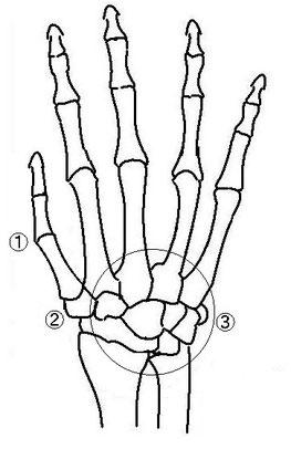 演奏で傷めやすい手の関節・指の関節