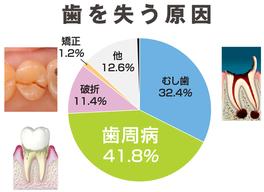 八戸市の歯科くぼた歯科 虫歯、歯周病