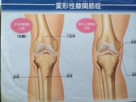 怪我・障害からの回復もご相談ください。