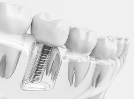 -zahnarztpraxis-zahnarzt-carina-sell-giessen-kinderzahnarzt-implantologie