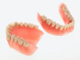 Zahnarztpraxis Dr.Gune in Dallgow-Döberitz - Teleskoparbeiten - Fallbeispiel für eine Totalprothese