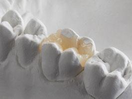 Zahnarztpraxis Dr.Gune in Dallgow-Döberitz - Keramikrestaurationen -Fallbeispiel für Vollkeramik Inlay