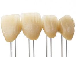 Zahnarztpraxis Dr.Gune in Dallgow-Döberitz - Keramikrestaurationen - Fallbeispiel für Frontzahnkronen
