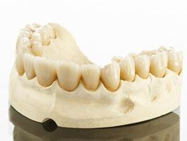 Zahnarztpraxis Dr.Gune in Dallgow-Döberitz - Keramikrestaurationen - Fallbeispiel für Kronen auf allen Zähnen