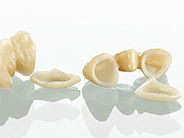 Zahnarztpraxis Dr.Gune in Dallgow-Döberitz - Keramikrestaurationen - Fallbeispiel für Kronen
