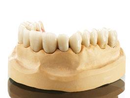 Zahnarztpraxis Dr.Gune in Dallgow-Döberitz - Teleskoparbeiten -  Kombiarbeit auf Modell