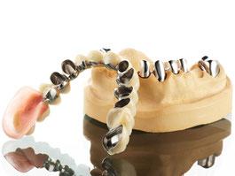 Zahnarztpraxis Dr.Gune in Dallgow-Döberitz - Teleskoparbeiten - Kombiarbeit