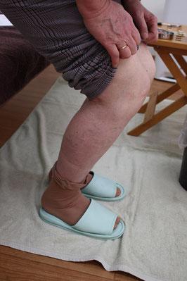 お灸前にひざを曲げてもらいました