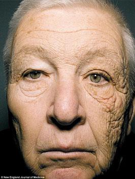 69-jähriger Taxifahrer, dessen linke Gesichtshälfte wegen des Lichts durch das Autofenster deutlich stärker gealtert ist. Bildquelle: New England Journal of Medicine