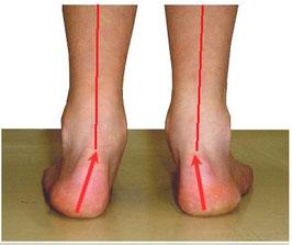 偏平足により足首の角度が内側に倒れるイメージ写真