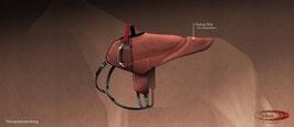 SIBA-Hippo Sattel Klassik - Sonderedition - bunte Einfassung
