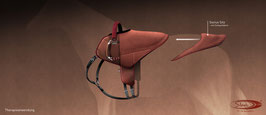 SIBA-Hippo Sattel Premium - Sonderedition, bunte Einfassung