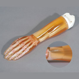 Hand / Unterarm Phantom mit Frakturen