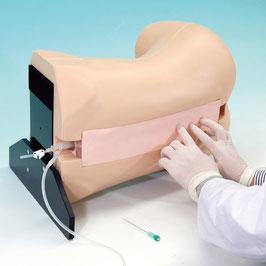 Epiduralanästhesie Simulator
