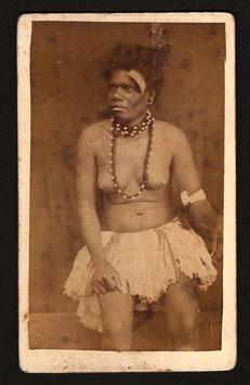 CDV : Photographe anonyme : Femme Kanak #1 (c.1885)