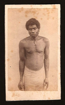 "CDV : Photographe anonyme : ""Indigène de Lifou"" (c.1885)"