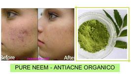 MASCARILLA DE NEEM - Anti Acne