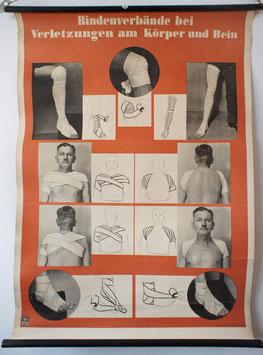 Bindenverbände bei Verletzungen am Körper und Arm