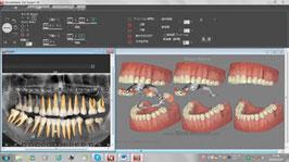 DentalMaster 3Dex & PA   デンタルマスター3Dエキスパート&パーソナルアシスタンス