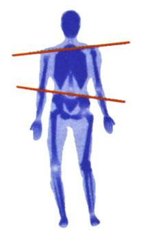 Fernbehandlung Wirbelsäulen-Aufrichtung und Transformation